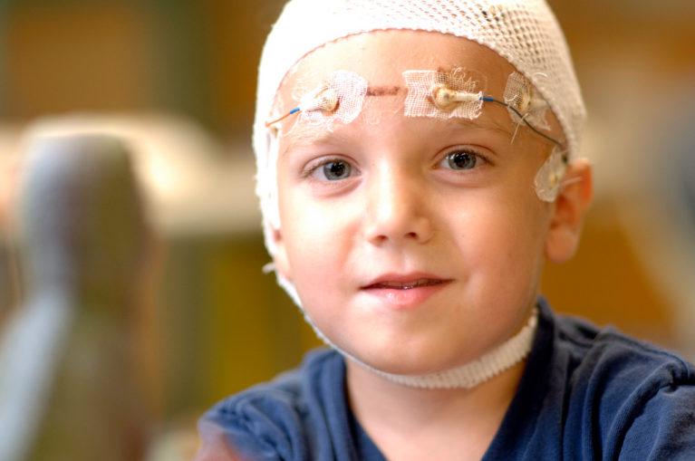 Child with epilepsy